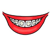 Braces (orthodontics)
