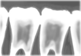 Braces (orthodontics)